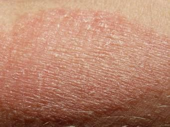 psoriasis  eczema differences  symptoms  treatment