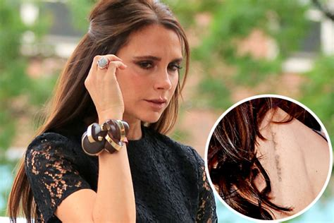 victoria beckham tattoo removal beckham undergoing treatments why this is