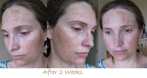 vichy dark spot corrector before and after photos girlwiththeskew earring vichy idealia pro dark spot corrector
