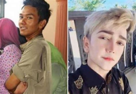 isu dan berita hangat artis malaysia buat pembedahan plastik lelaki melayu ini berhabis rm200k untuk bedah plastik