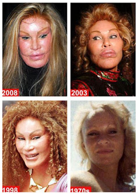 And Dean His Post Baby Plastic Surgery by Plastic Surgery Babycenter