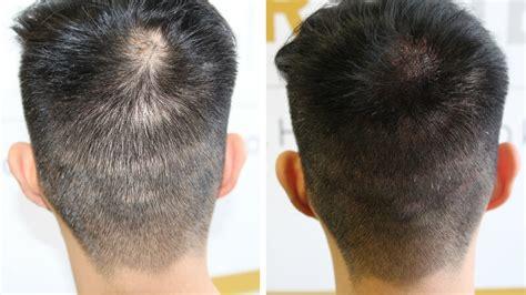scalp micropigmentation to make hair ticker pictures scalp micropigmentation to make hair ticker pictures
