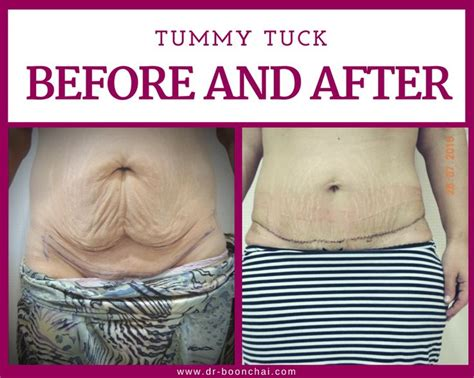will insurance pay for tummy tuck after c section 1000 ideas about tummy tuck cost on pinterest plastic