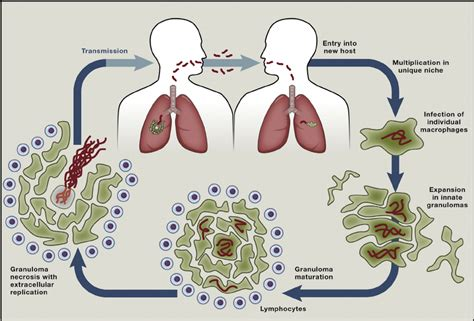 tuberculosis diagram tb our modern day scourge dr fundile nyati