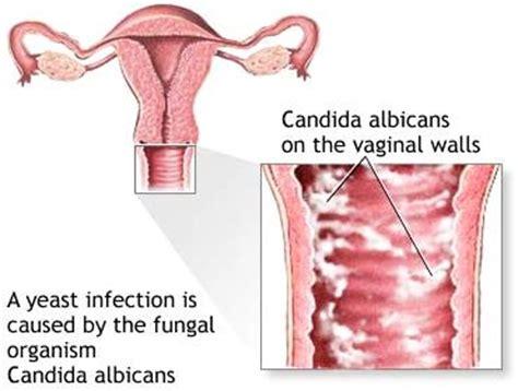 heavy hair on vigina candidiasis or thrush fungal infection ayurvedic