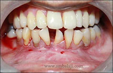 clinic updates balaji dental craniofacial hospital