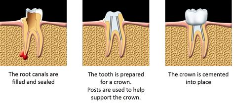 diy root canal root canal treatment vancouver kare dental
