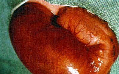 hirschsprung disease screen 7 on flowvella