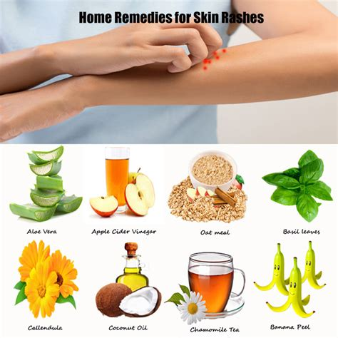 get rid of rashes with 10 simple skin rash home remedies