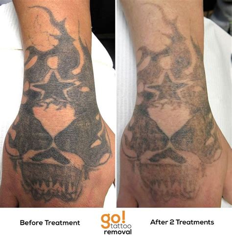 Hand Tattoo Removal Before And After | hand tattoo removal before and after danielhuscroft com