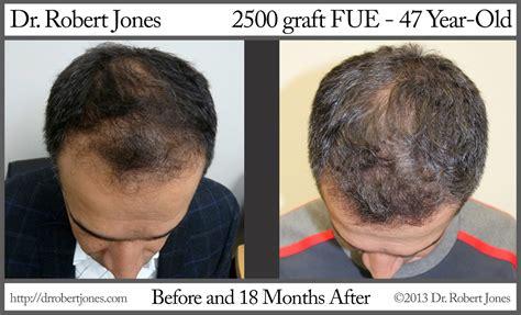 dr yates fue cost per graft dr robert jones 187 2500 graft fue an effective hair