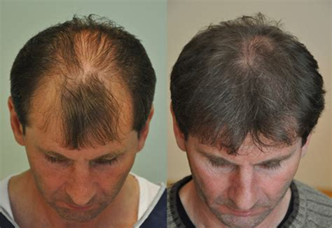 hair transplant cost in tianjin china fue hair transplant fue hair transplant cost procedure