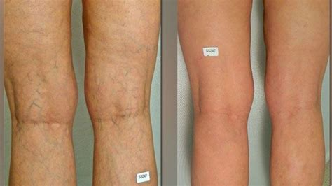 tattoo over varicose veins best varicose vein makeup fay