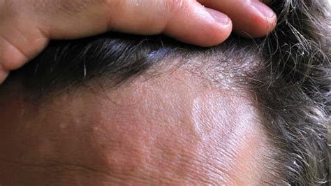 best hair for psoriasis smart ways to deal with scalp psoriasis secretly healthy
