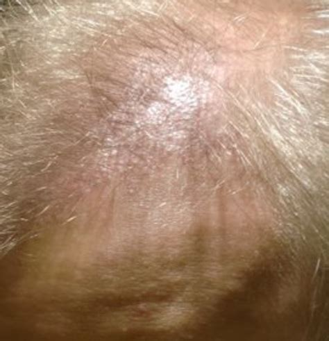 Can Blisters In And Hair Loss Be From Detox by Bumps On Scalp And Hair Loss I Small Bumps On My