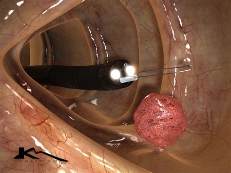 Colonoscopy Also Search For High Resolution Images Polyp Removal Keokimed