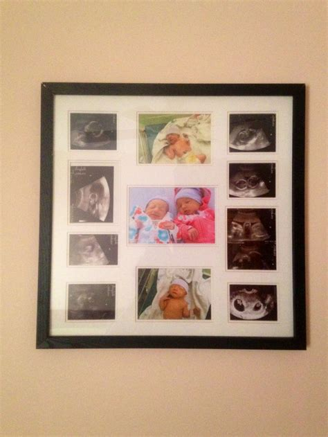 A Cute Simple Way To Show Off Ultrasound Pictures A Ultrasound Collage