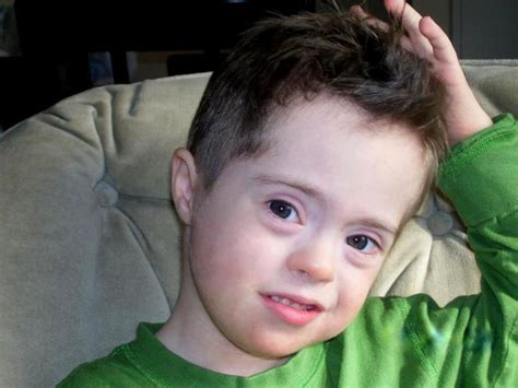 mosaic pattern down syndrome image gallery trisomy 9 mosaicism