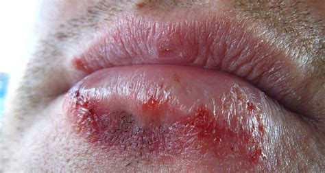 Detox Herpes Outbreak by Herbal Supplement For Herpes Zoster Symptoms Of