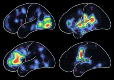 color pattern brain patterns of brain activity alzheimer s association