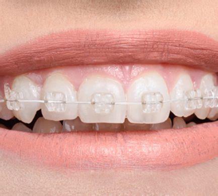 orthodontics fixed braces adult braces dental solutions