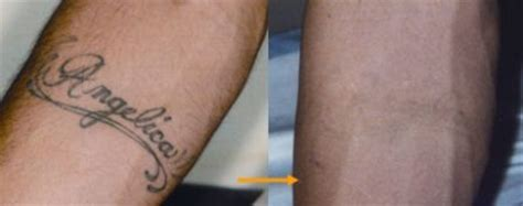 tattoo removal japan u s board certified clinic plastic surgery for men in