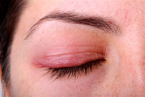 eyelid swollen inflammation of eyelid