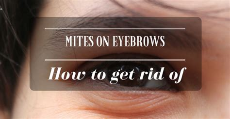 how to get rid of lice on couches 90 eyebrow bugs removing bugs from your ear do we