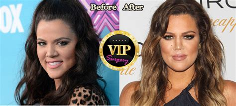 khloe kardashian plastic surgery 2015 khlo 233 kardashian plastic surgery before and after pictures