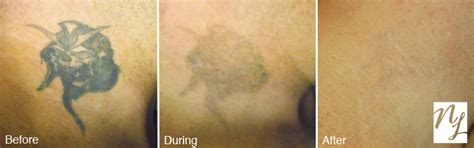 before amp after photos new look laser tattoo removal