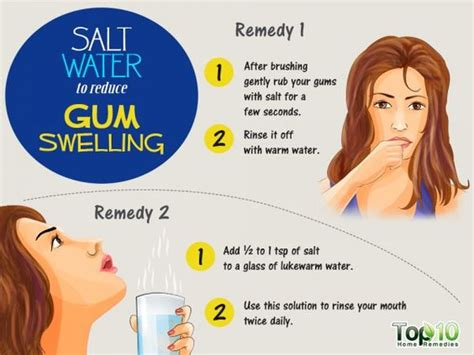 home remedies to reduce gum swelling home salts and