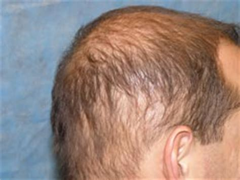 diffuse hair loss male pattern baldness what is diffuse unpatterned alopecia dupa regrow hair q a