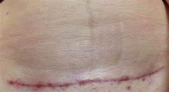 C Section Scar Fade by Up Of Cs Scar Pic Babycenter