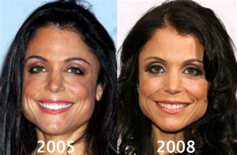 bethenny frankel plastic surgery before and after bethenny frankel plastic surgery before and after photos