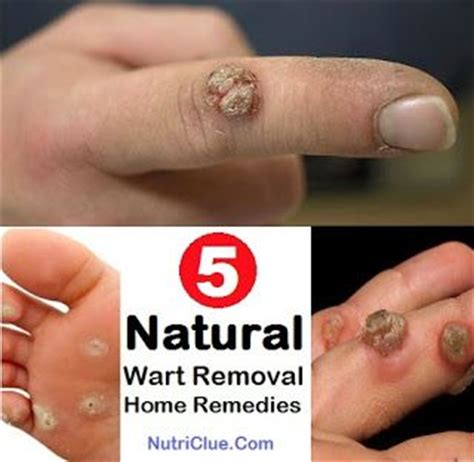 5 wart removal home remedies nutriclue