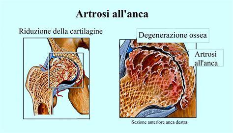contrattura interno coscia dolore alla coscia destra o sinistra interno o esterno
