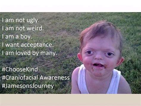 Jameson Meme - mom defends son with pfeiffer syndrome against offensive