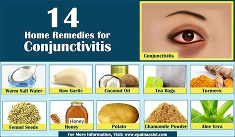 home remedies to ease the symptoms of pink eye or