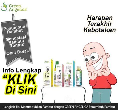 Merawat Dan Mencegah Rambut Anda Rontok Sho Green cara merawat rambut rontok berminyak dan ketombe obat rambut botak