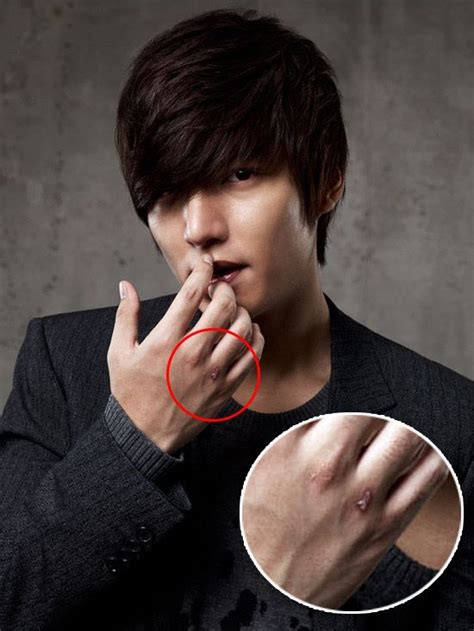 films lee min ho has acted pretty boy lee min ho has scratches on his knuckles