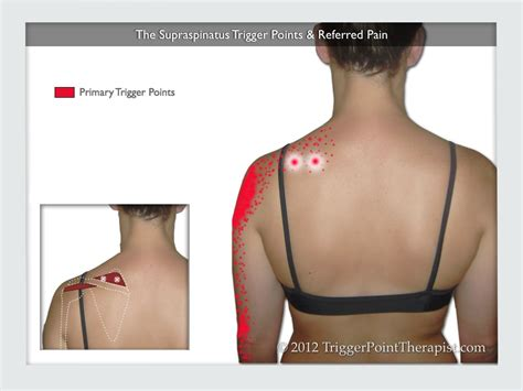 Referred Shoulder After C Section by Supraspinatus Trigger Points Treating The Stubborn Atus