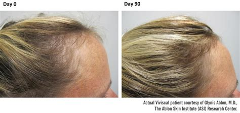 viviscal before after viviscal maximum strength newhairstylesformen2014 com