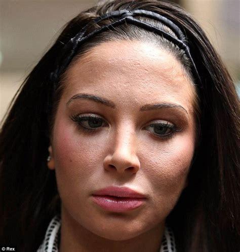 tulisa s tulisa hits back at claims she s had cosmetic surgery