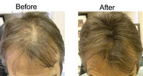 thinning hair loss treatment   instant hair
