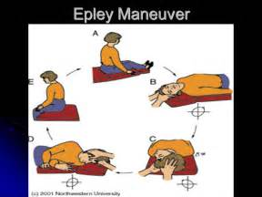home epley maneuver presented by a hillier d o em resident st west
