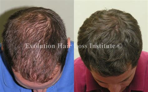 hair growth before and after before and after hair growth treatment photos