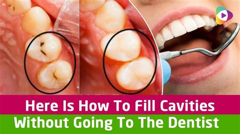 Why Get An Mba When Going To Dental School by Here Is How To Fill Cavities Without Going To The Dentist