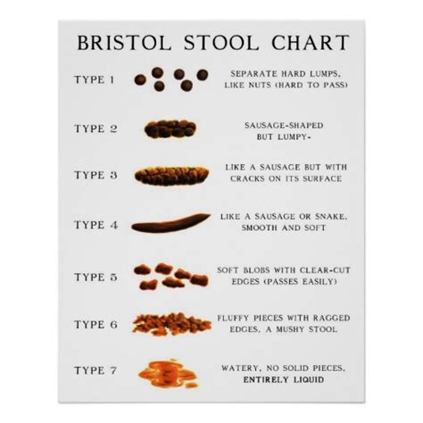 Bristol Stool Scale Poster by Stool Chart Poster Zazzle