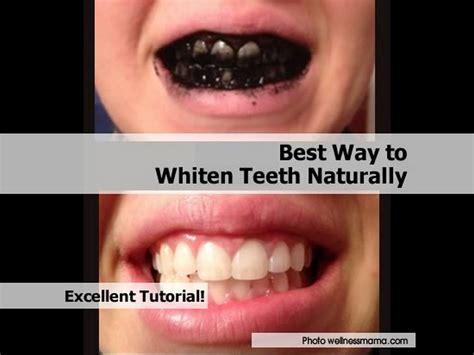 best way to whiten teeth naturally