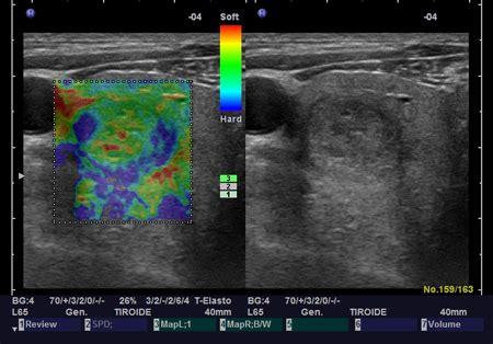 ecografie pavia studio di endocrinologia e diabetologia studio medico
